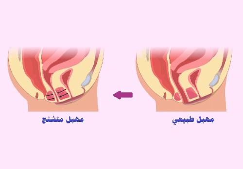 التشنج المهبلي – الأسباب والمضاعفات والعلاج